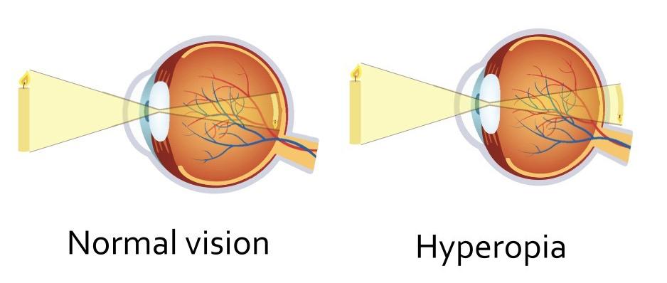 υπερμετρωπια-ματια
